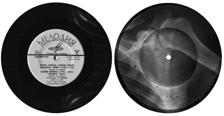 6 pav. Fabrikinė (kairėje) ir savadarbė plokštelė iš rentgeno nuotraukos, apie 1965 m.
