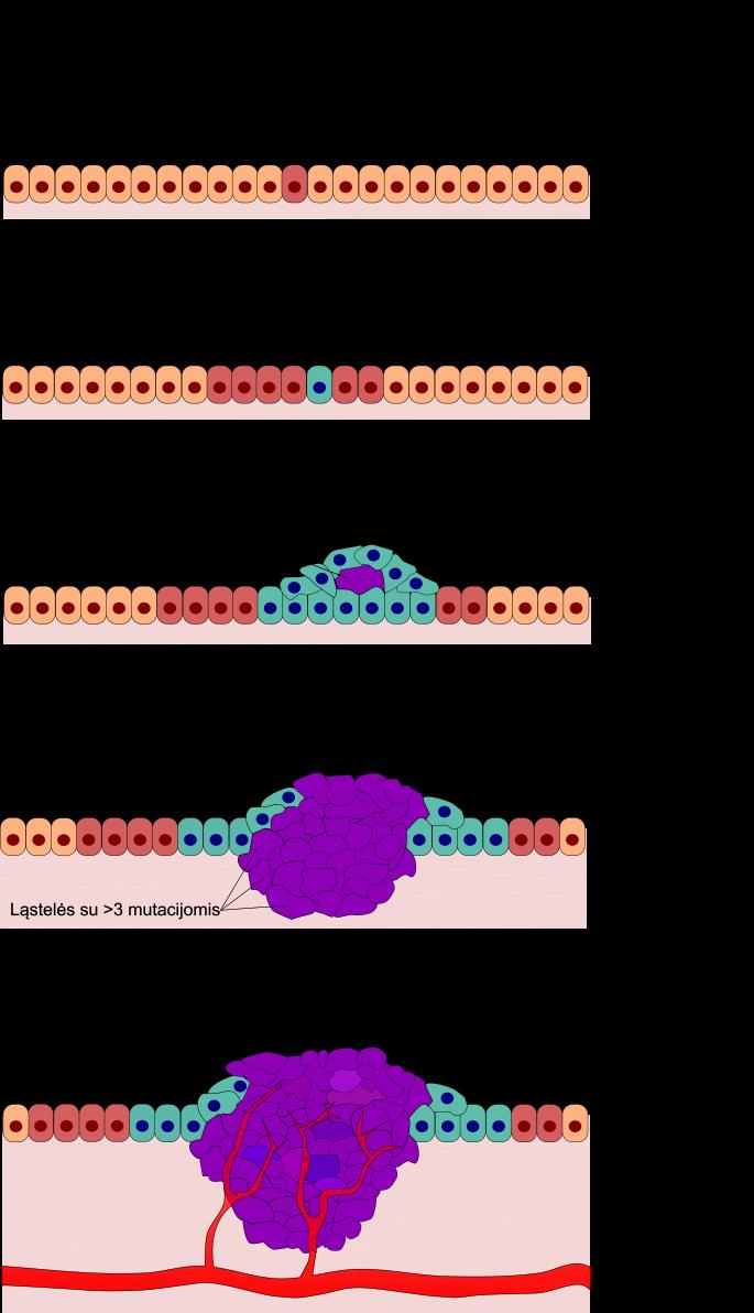 Vėžinių ląstelių susidarymo etapai